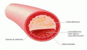 Colesterolo: conoscerlo per domarlo!